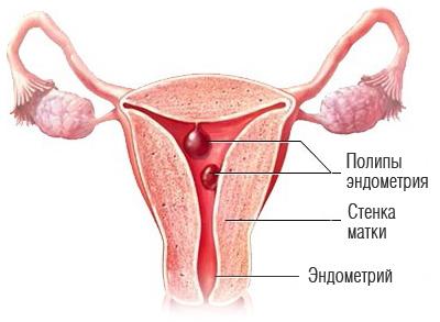 Полип эндометрия - причины и признаки, способы лечения